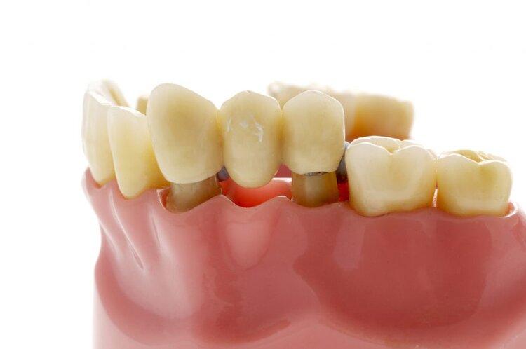 Dental Bridges Johnsonville Family Dentist