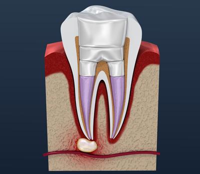 root canal - Johnsonville Family Dentist