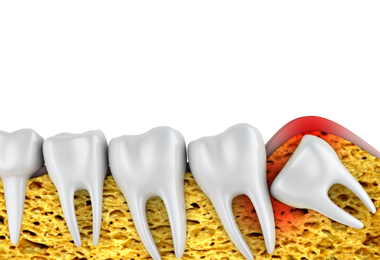wisdom teeth extraction - Johnsonville Family Dentist